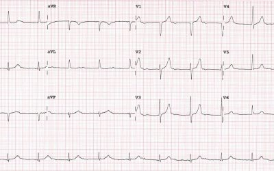 ECG Of The Month – June 2020