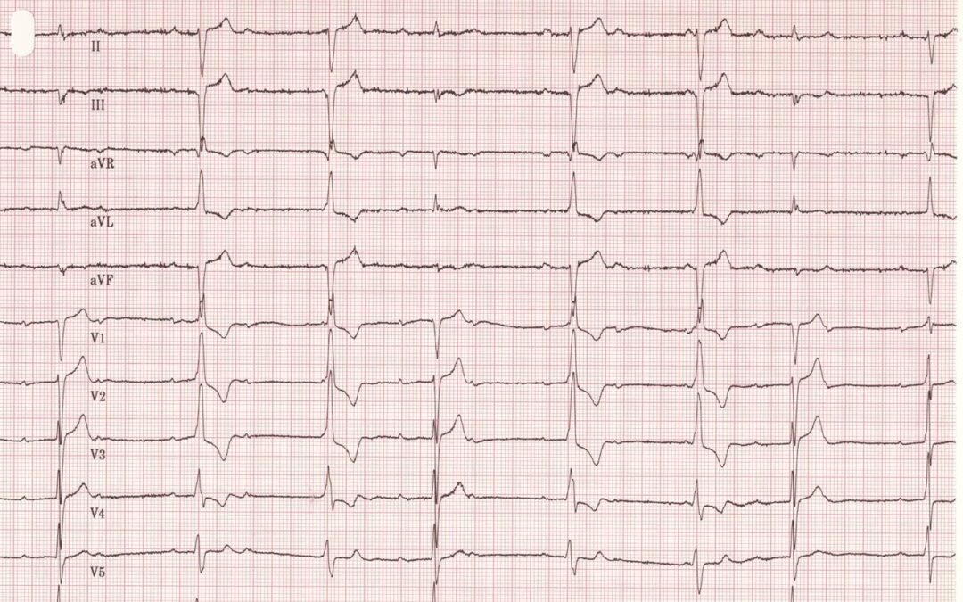Dr Dave Richley's ECG of the Month – July 2020