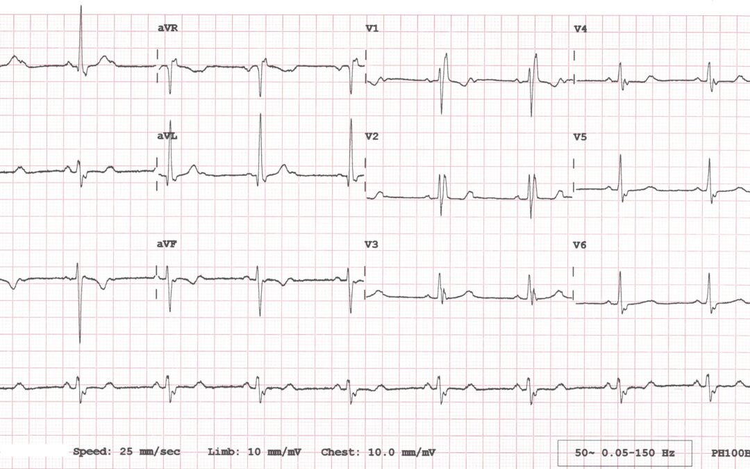 Dr Dave Richley's ECG of the Month – August 2020