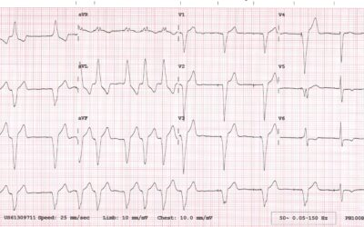 Dr Dave Richley's ECG of the Month – September  2020