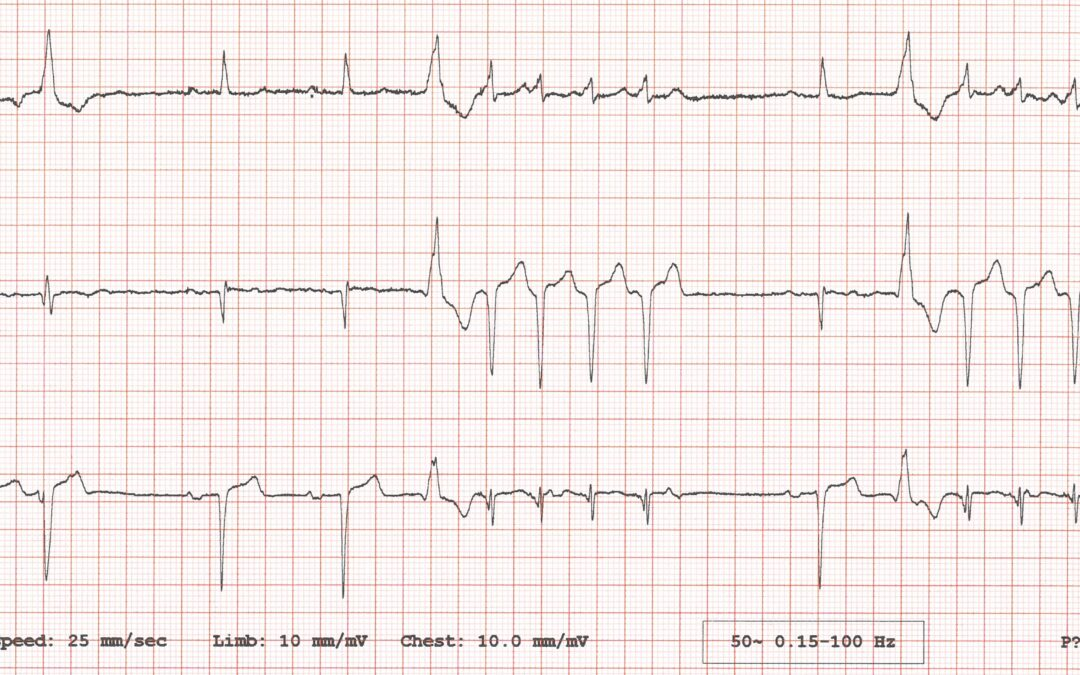 Dr Dave Richley's ECG of the Month – October  2020