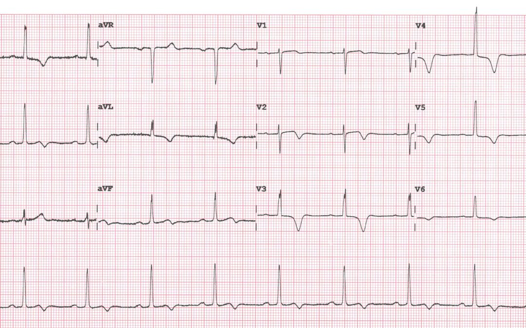 Dr Dave Richley's ECG of the Month – November  2020