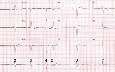 Dr Dave Richley's ECG of the Month – December 2020