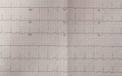 Dr Dave Richley ECG of the Month – February 2021