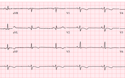 Dr Dave Richley ECG of the Month – March 2021