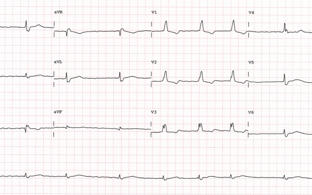 Dr Dave Richley ECG of the Month – April 2021