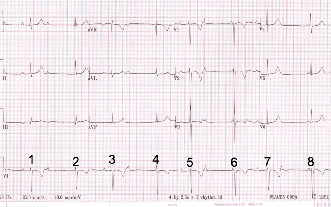 Dr Dave Richley ECG of the Month – May 2021