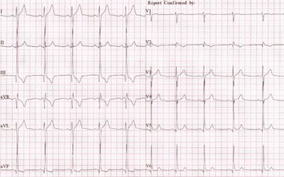 Dr Dave Richley ECG of the Month – June 2021