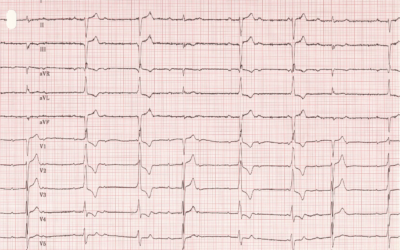 Dr Dave Richley ECG of the Month – July 2021