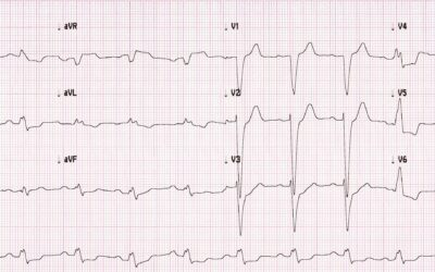 Dr Dave Richley ECG of the Month – August 2021