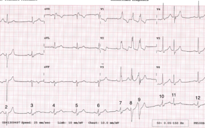 Dr Dave Richley ECG of the Month – September 2021