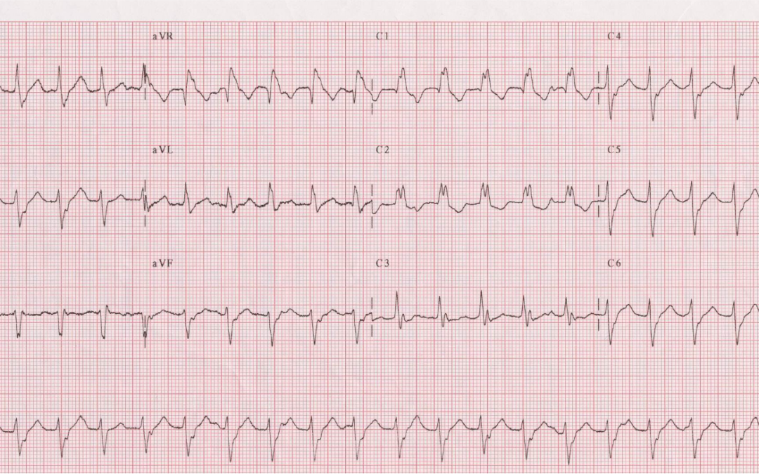 Dr Dave Richley ECG of the Month – October 2021